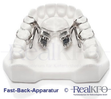 RealKFO - Fast-Back-Apparatur